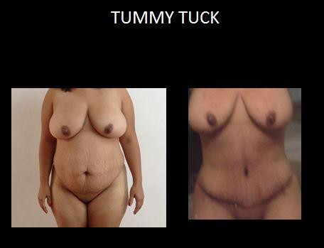 Tummy tuck4