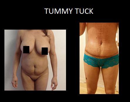 Tummy tuck5