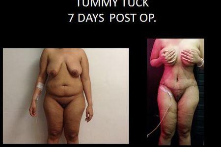 Tummy tuck6