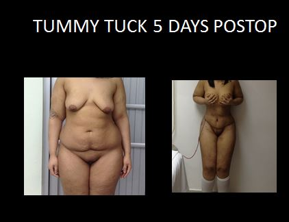 Tummy tuck9