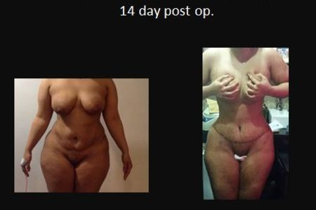 Tummy tuck11