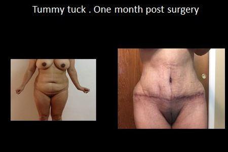 Tummy tuck12