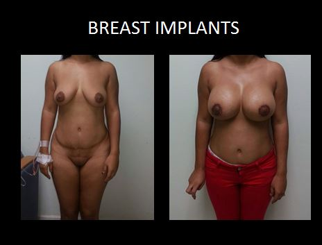 Breast implants3