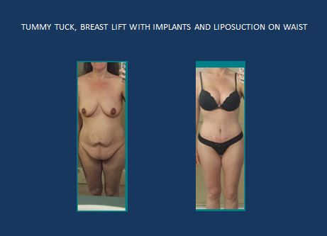 Tummy tuck   breast implants and lipo