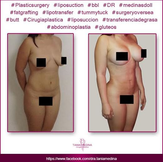 Tummy tuck   breast implants and lipo1
