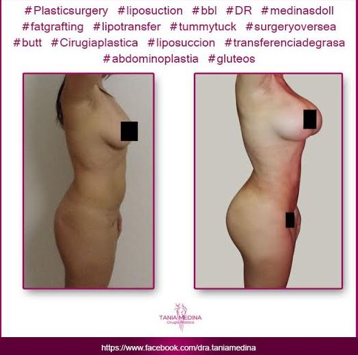 Tummy tuck   breast implants and lipo2