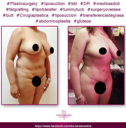 Tummy tuck   breast implants and lipo4