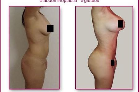 Tummy tuck   breast implants and lipo2
