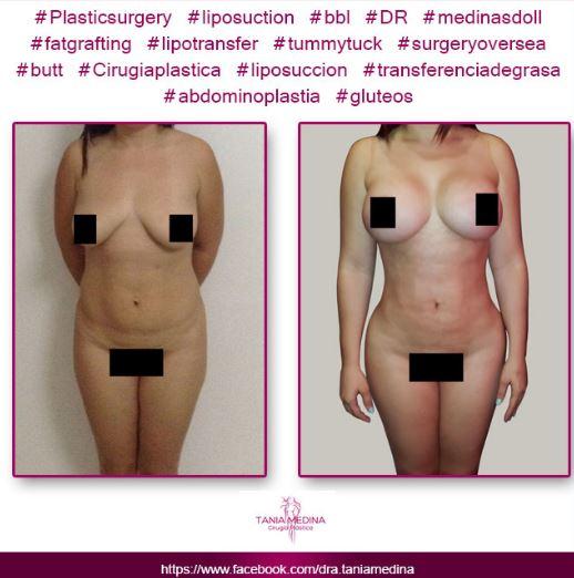 Tummy tuck   breast implants and lipo3