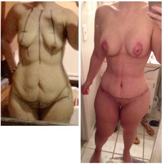 Tummy tuck   breast implant