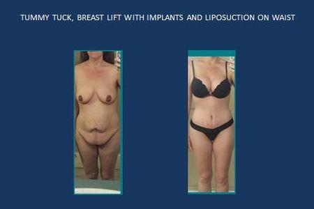 Tummy tuck   breast implants and lipo