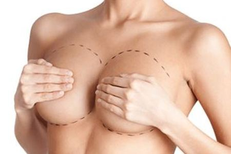 Breast reconstruction1