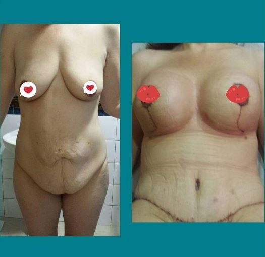 Tummy tuck   breast augmentation
