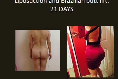 Butt Augmentation