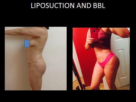 Lipo and bbl5