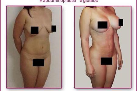 Tummy tuck   breast implants and lipo1