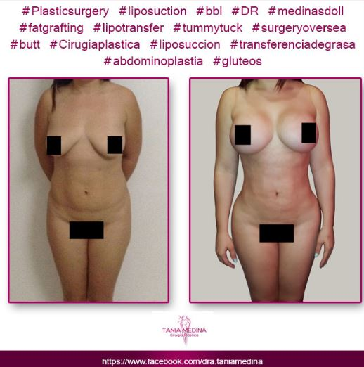 Tummy tuck   breast implants and lipo3