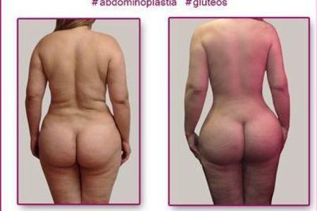 Tummy tuck   lipo   bbl1