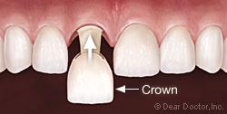 Por crown1