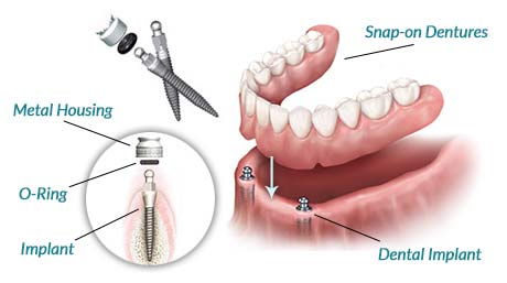 Snap On Dentures 2 Dental Implants Globomd