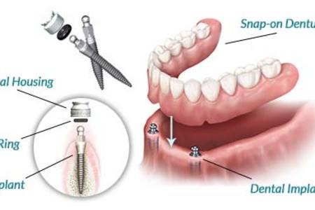 Snap On Dentures 2 Dental Implants