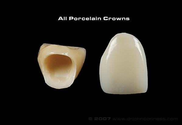 Por crown