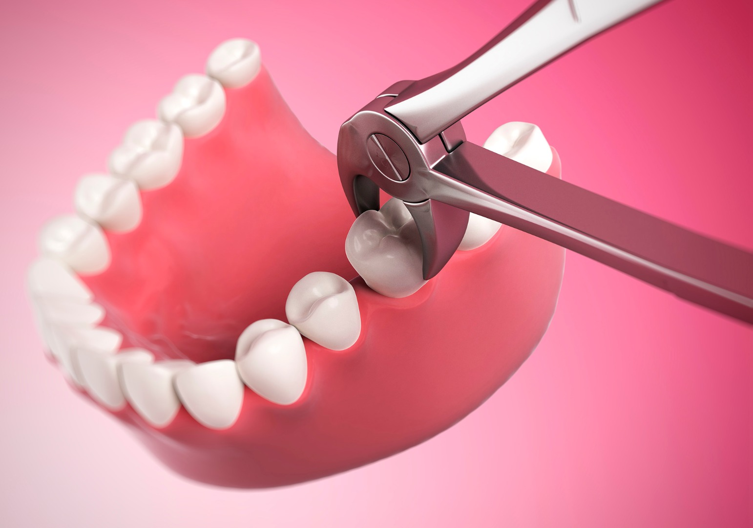 Simple tooth extraction 1