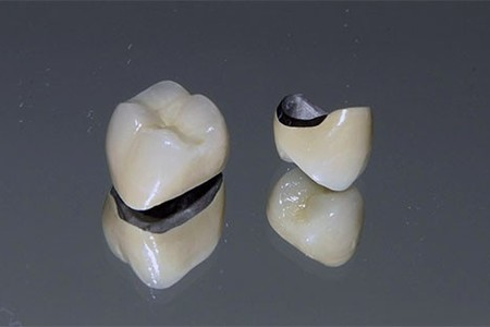 Porcelain Fused To Metal Dental Crown