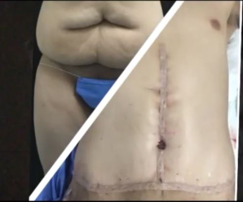 Male tummy tuck dr. ya%c3%b1es 5
