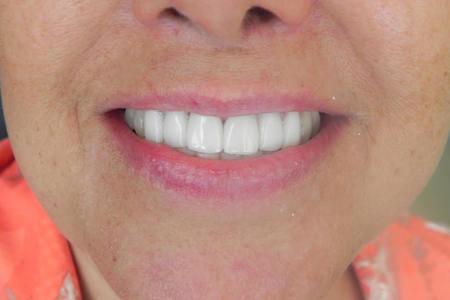 Permanent Dentures