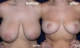 Reduction ba