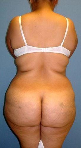 Tummy 2