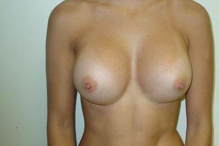 Breast 1 2