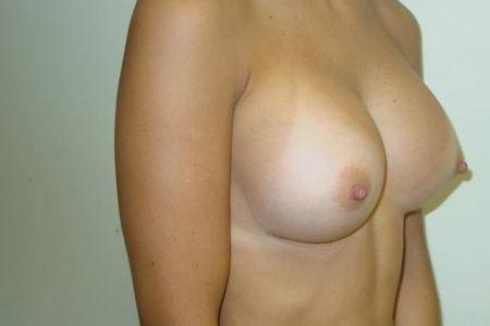 Breast 1 4