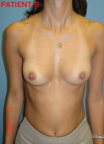 Breast 2 1