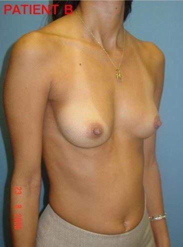 Breast 2 3