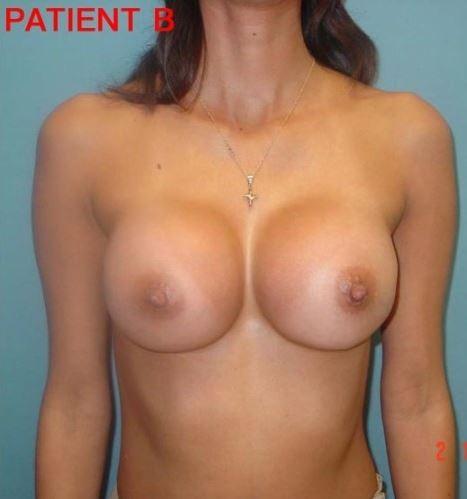 Breast 2 2