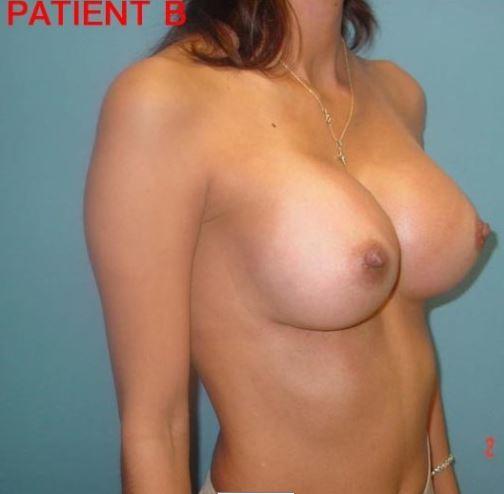 Breast 2 4