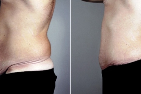 Male abdominoplasty 03c