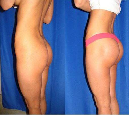 Before and after buttock augmentation of best doctor