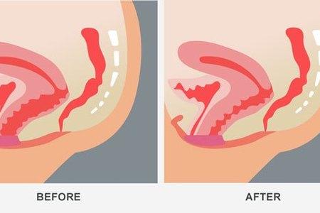 Diagram vaginoplasty