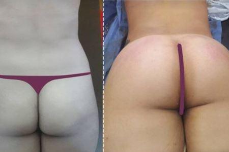 Gluteoplasty / Brazilian Butt Lift