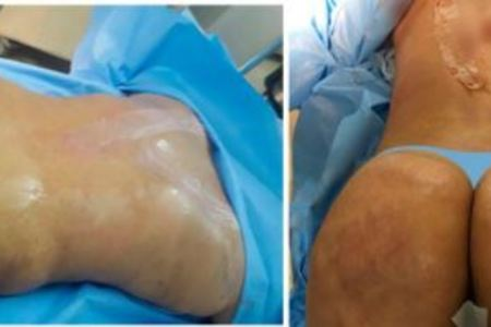 Liposuction / Liposculture
