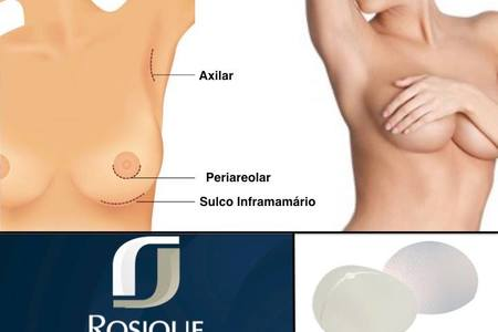 Breast augmentantion with