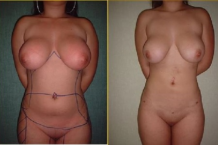 Liposculte beforeafter1