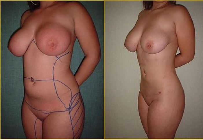 Liposculte beforeafter2