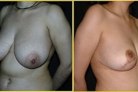 Breast reduction antesdespues