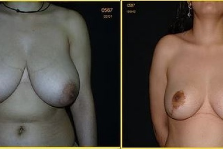 Breast reduction antesdespues 2
