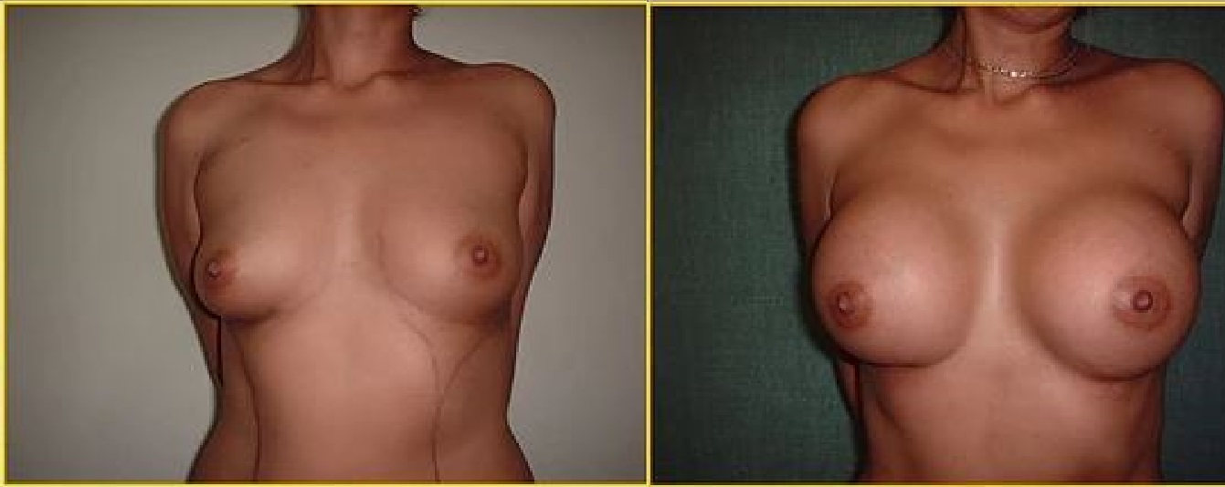 Breast augmentation antes y despues 3