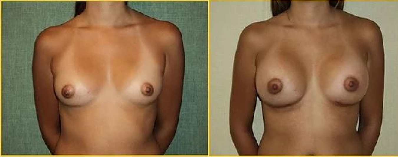 Breast augmentation antes y despues 1